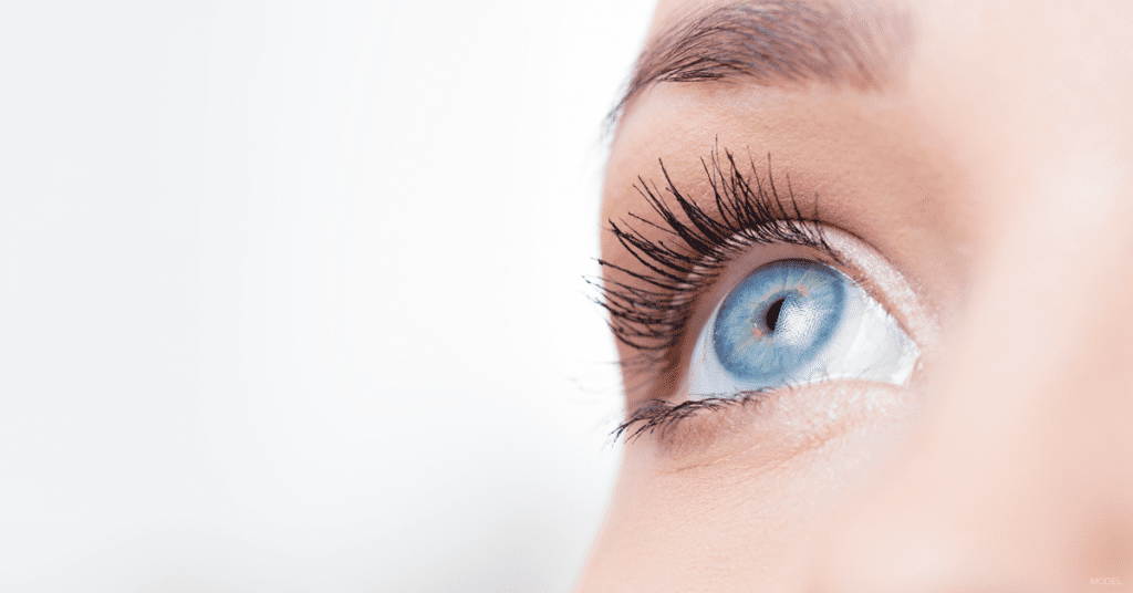 A woman's eyelid was improved following a blepharoplasty